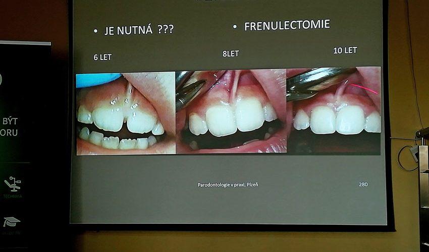 Školení parodontologie v praxi.