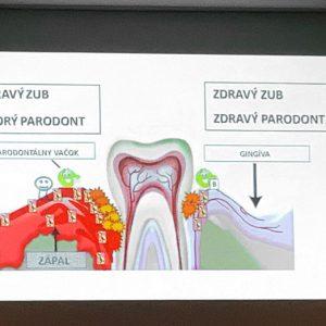 Protokol vyšetření a léčby pacienta s parodontititdou/periimplantitidou