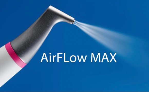 AirFLow MAX – Novinka v našem technickém dovybavení
